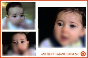 enfant-microphtalmie