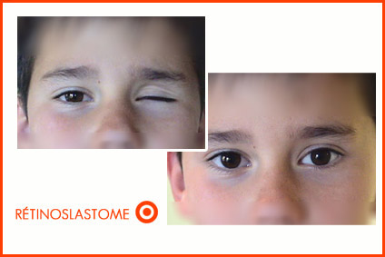 enfant-retino